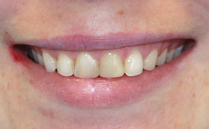 Before-Composite Fillings 1