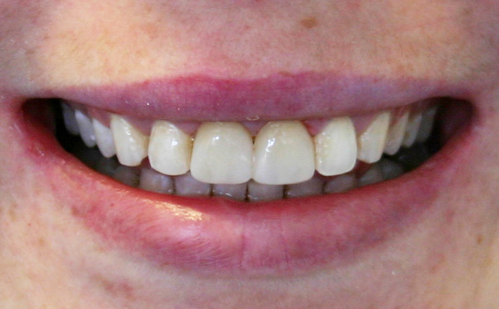 After-Composite Fillings 1