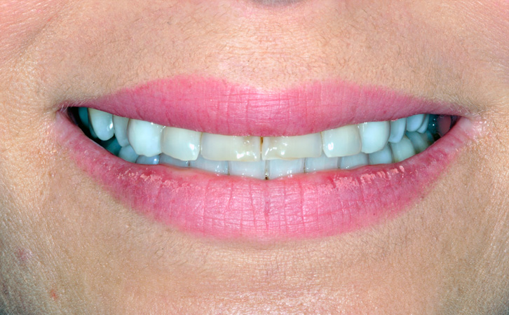 Before-Composite Fillings 2