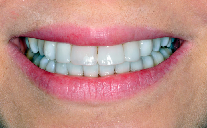 After-Composite Fillings 2