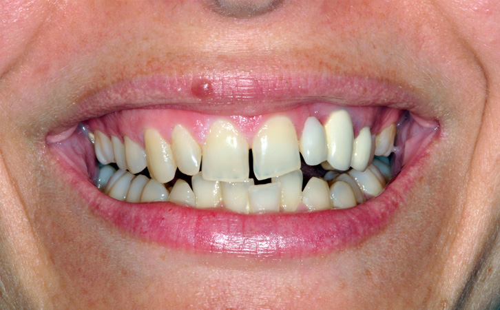 Before-Composite Fillings 3