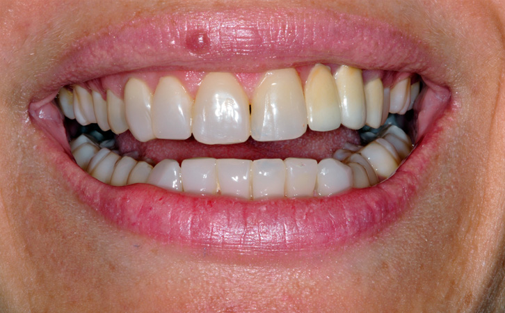 After-Composite Fillings 3