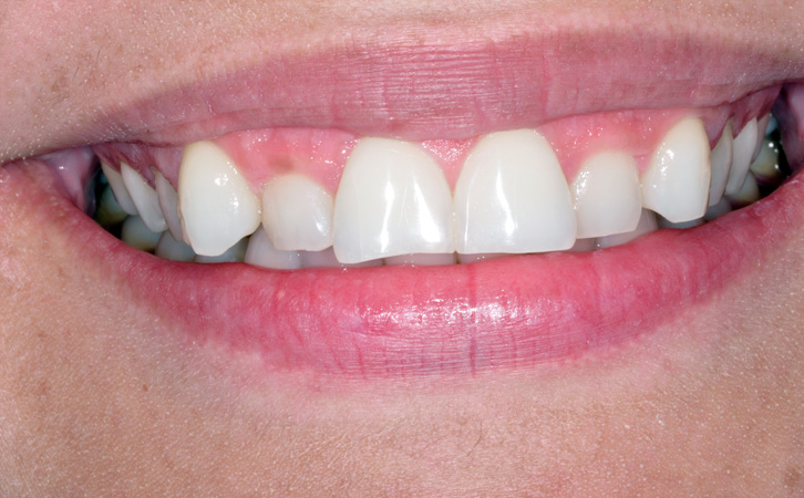 Before-Composite Fillings 4
