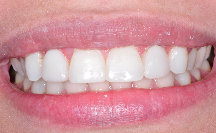 After-Composite Fillings 4