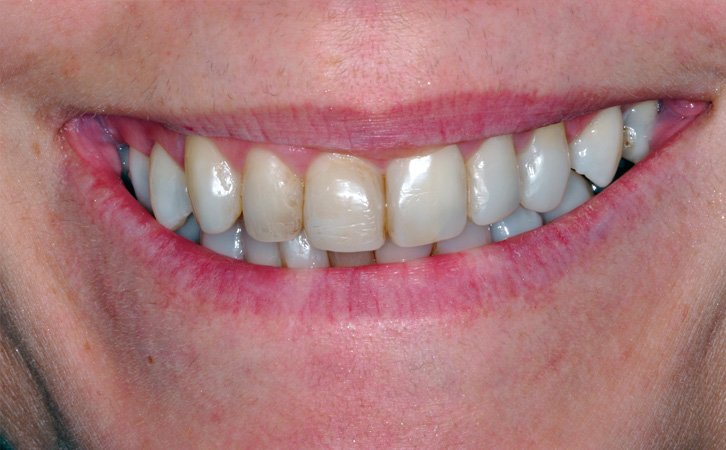 Before-Porcelain Veneers 1