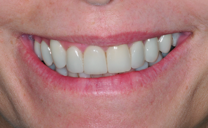 After-Porcelain Veneers 1