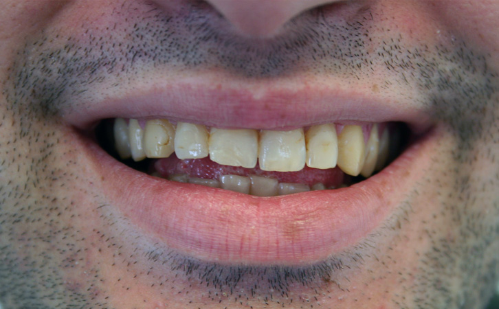 Before-Porcelain Veneers 2