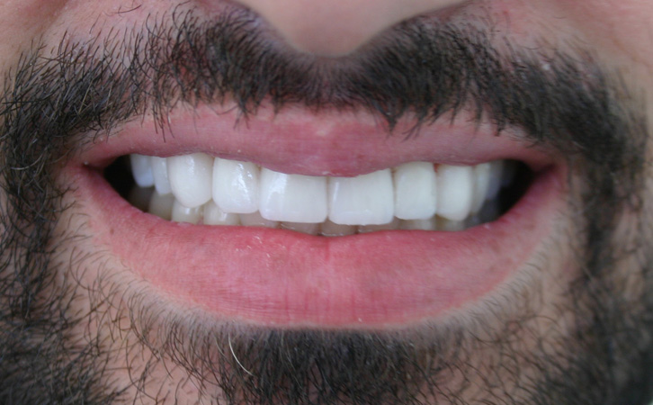 After-Porcelain Veneers 2