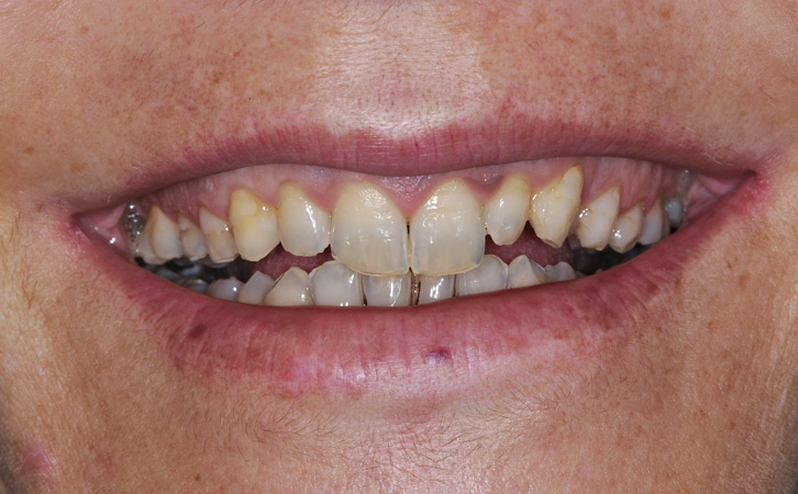 Before-Porcelain Veneers 3