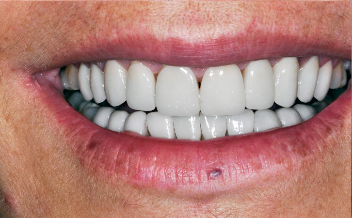 After-Porcelain Veneers 3