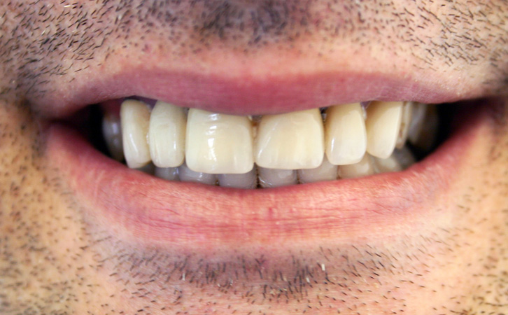 Before-Porcelain Veneers 4