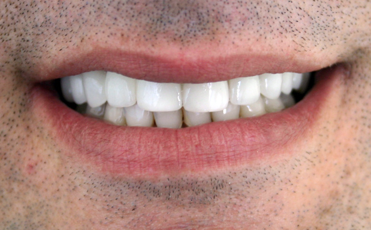 After-Porcelain Veneers 4