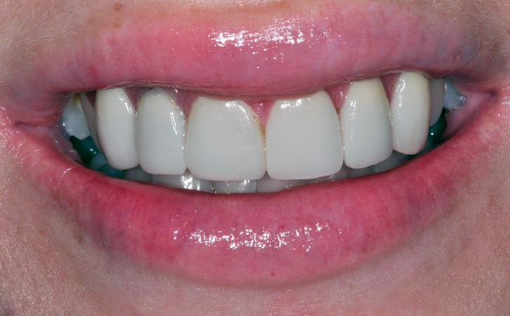 After-Porcelain Veneers 5