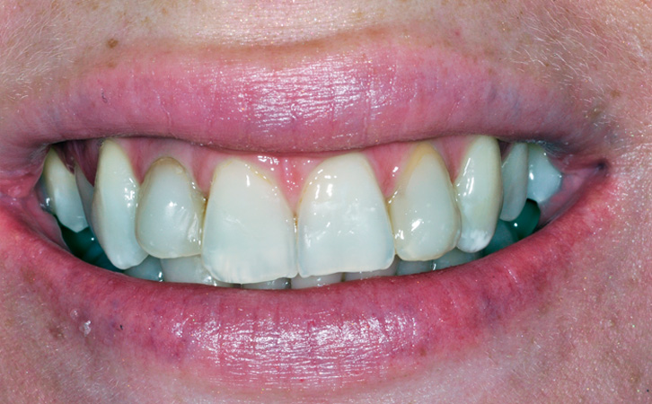 Before-Porcelain Veneers 5