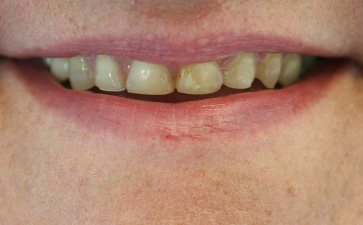 Before-Porcelain Crowns 2