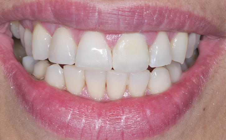 After-whitening 2