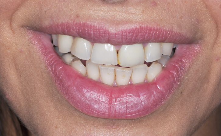 Before-whitening 2