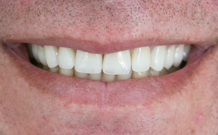 After-Porcelain Crowns 3