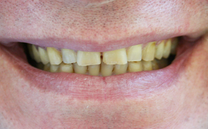 Before-Porcelain Crowns 3