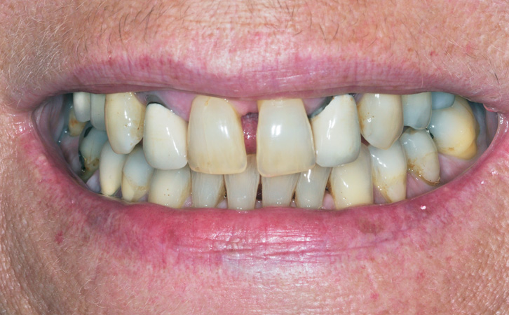 Before-Porcelain Crowns 4