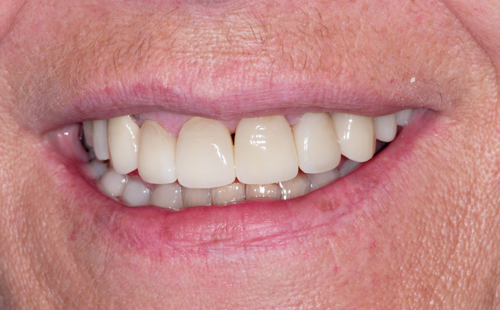 After-Porcelain Crowns 4
