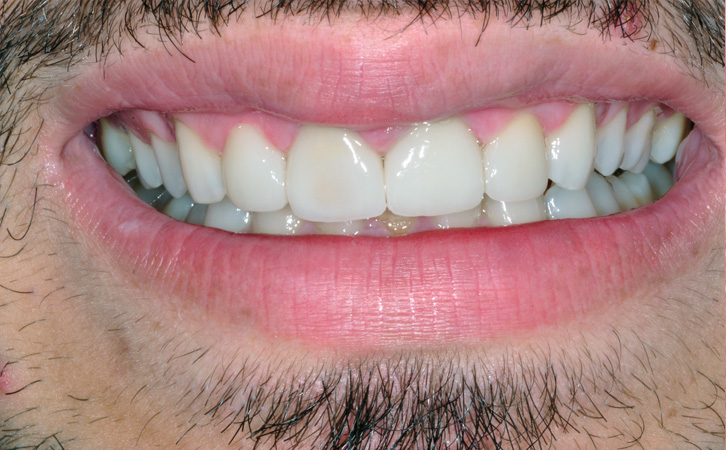 After-Porcelain Crowns 5