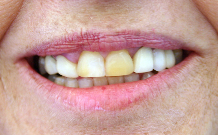 Before-Porcelain Crowns