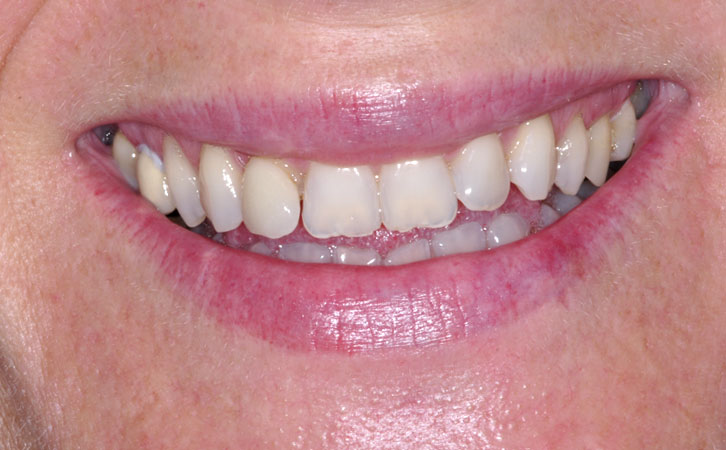 Before-Composite Fillings 5