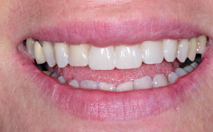 After-Composite Fillings 5